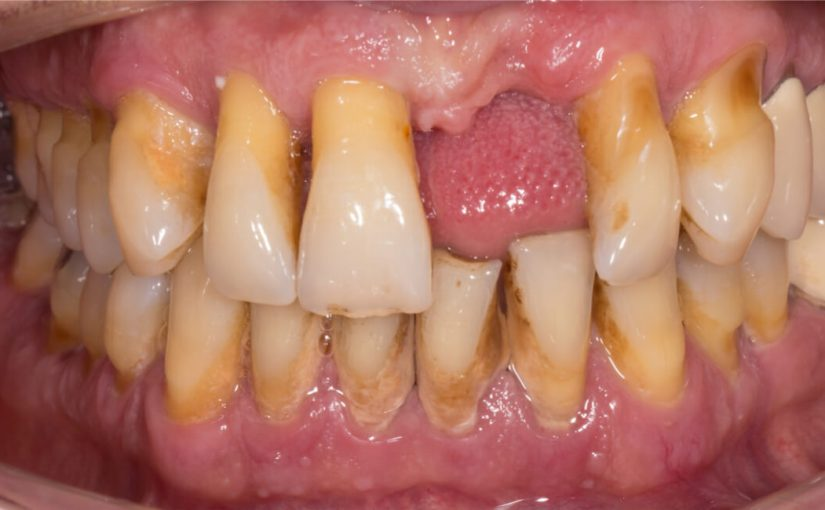 antibiotics for periodontitis